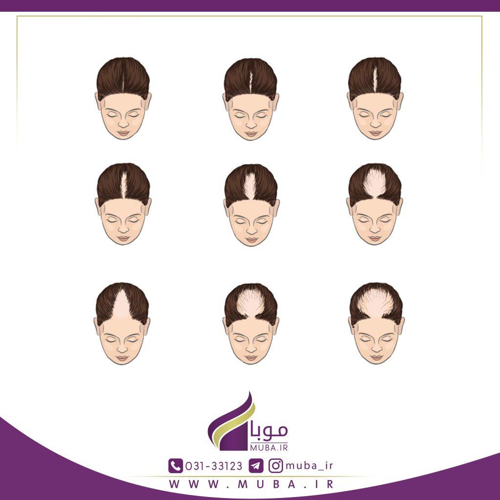 آندروژنیک آلوپسیا (ریزش مو) در بانوان