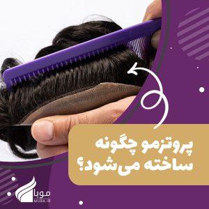 پروتز مو چگونه ساخته می شود؟